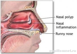 best nasal steroid for allergies